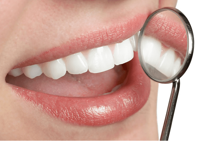 teeth-whitening-jacksonville