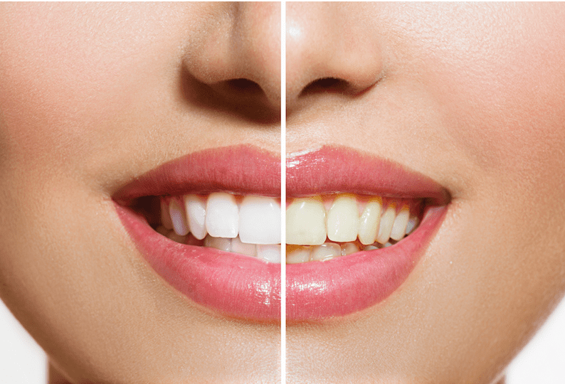 teeth whitening service in Jacksonville