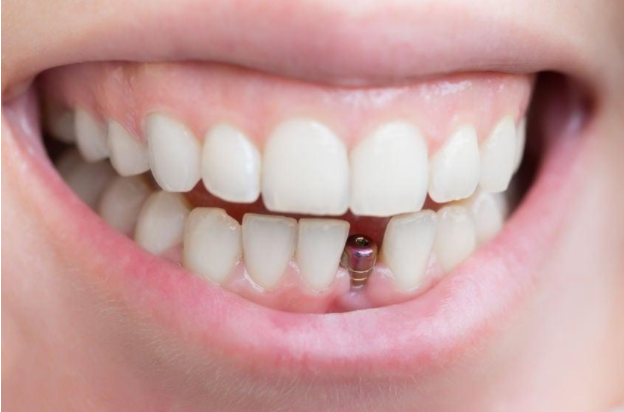 dental implants in Vancouver, BC